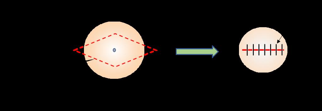粉瘤の紡錘切除法イメージ