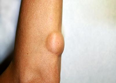 脂肪腫のイメージ