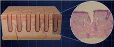 フラクショナルレーザーの作用イメージ