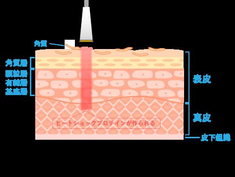 ジェネシスの治療イメージ